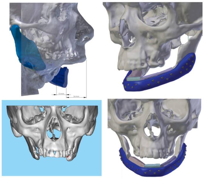 Cirurgia para reconstrução de mandíbula em Londrina dura 15 horas